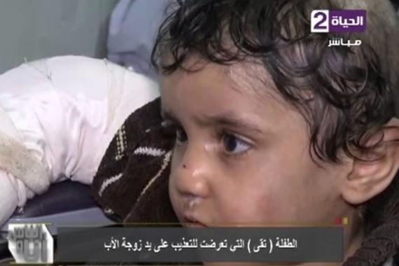 طفلة التعذيب