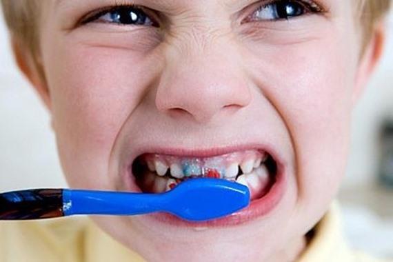 غسل الاسنان بطريقة خاطئة